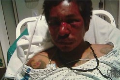 Man Gets Shot by Police, Fought With Them Nearly 2 Weeks Prior